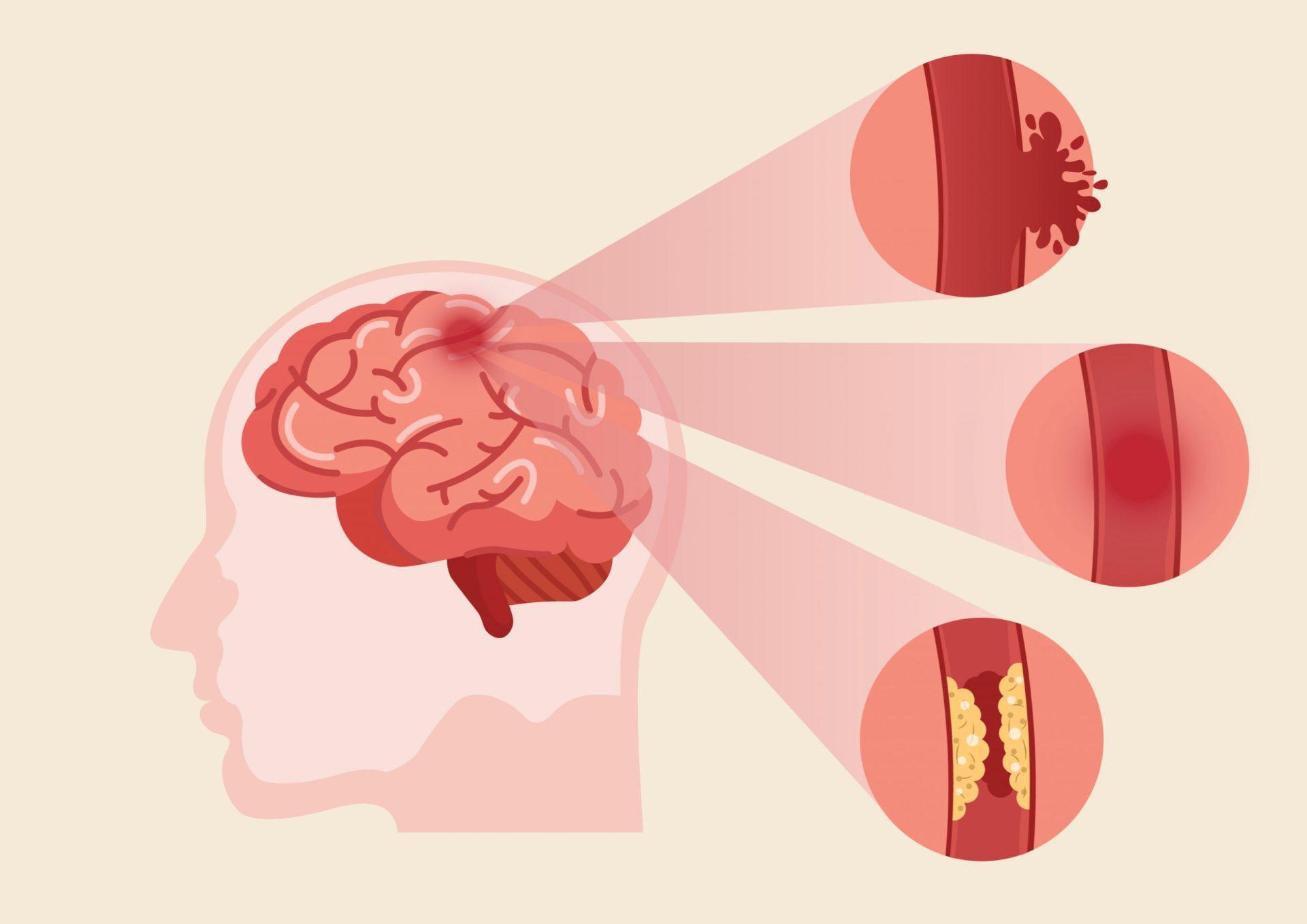poate scădea în greutate cauza accidentului vascular cerebral