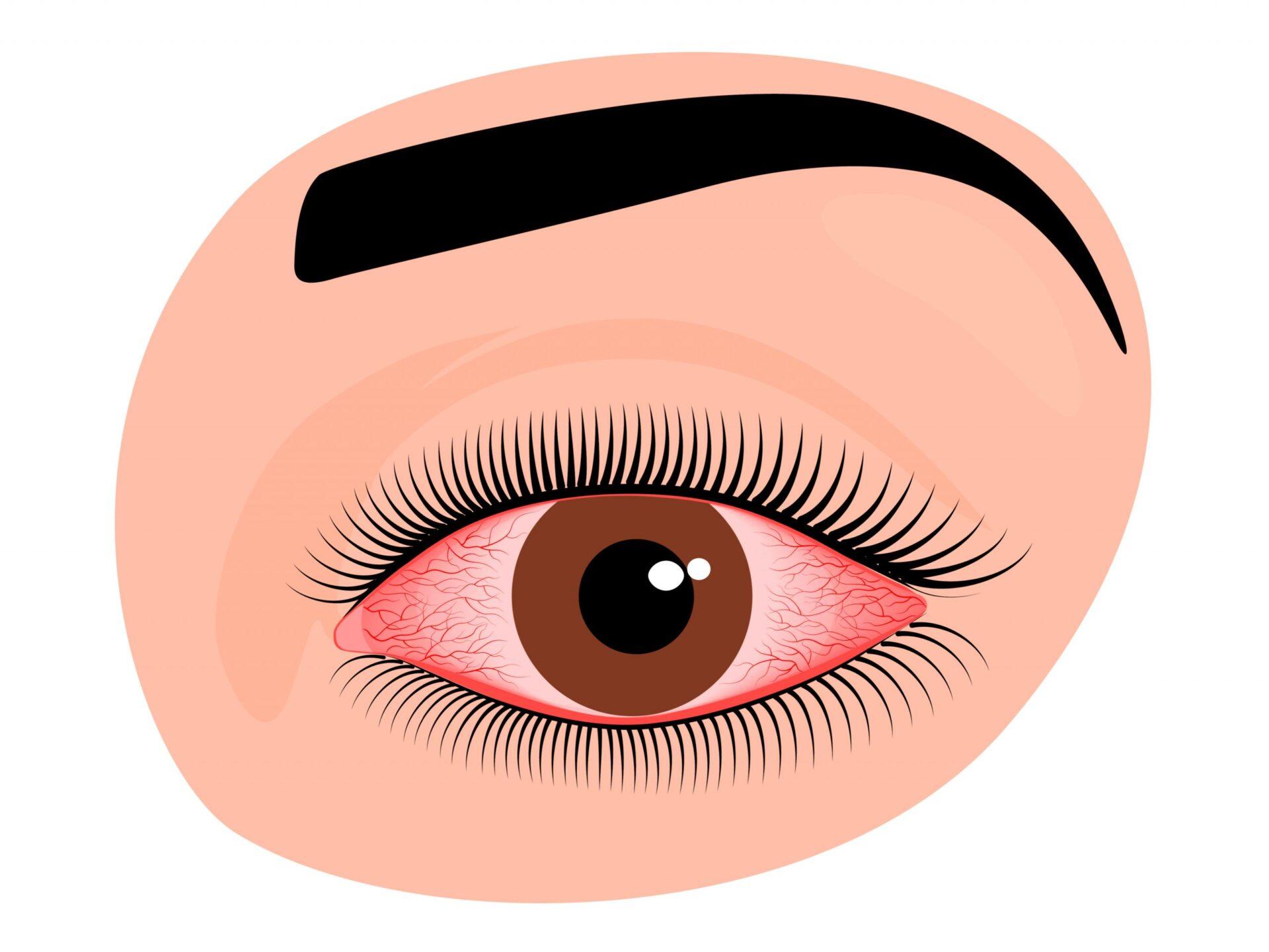 Pentru a preveni infectarea cu Covid-19, poartă și ochelari, nu doar mască, atunci când ieși din casă.