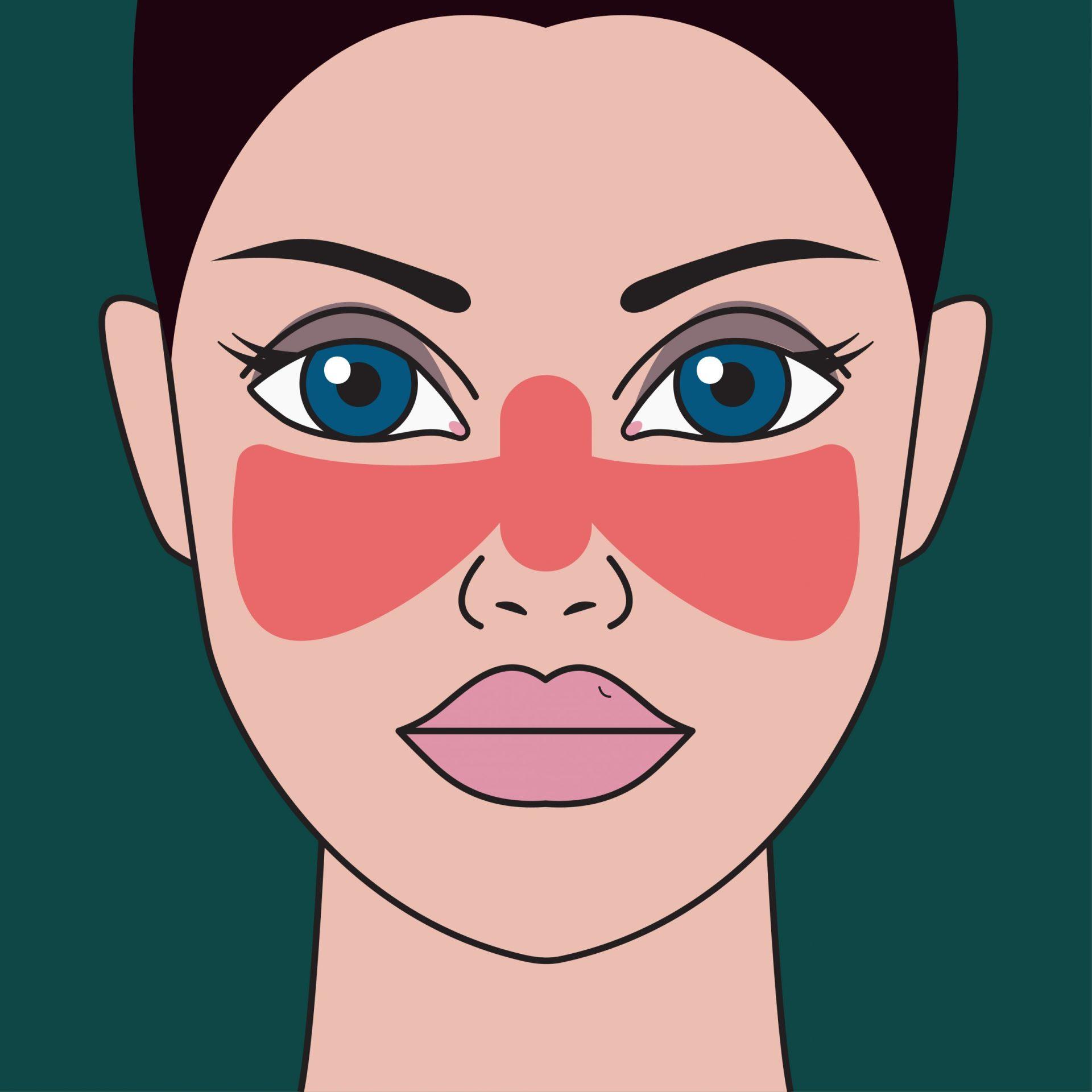 Lupus simptome: erupția în fluture la nivelul feței una dintre manifestările acestei boli