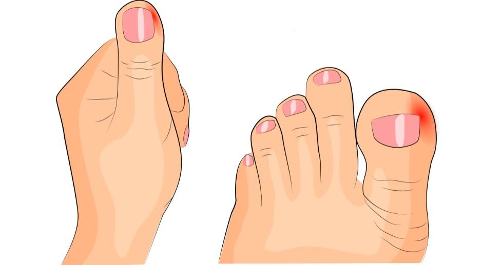 Netratată, unghia încarnată poate deforma degetul.