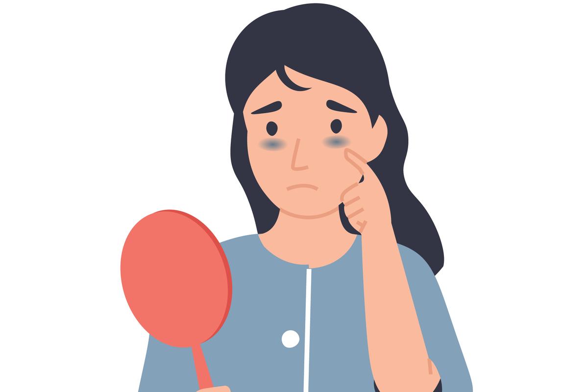 anemia hemolitica ce boli anunta. femeie obosita cu cearcane in oglinda