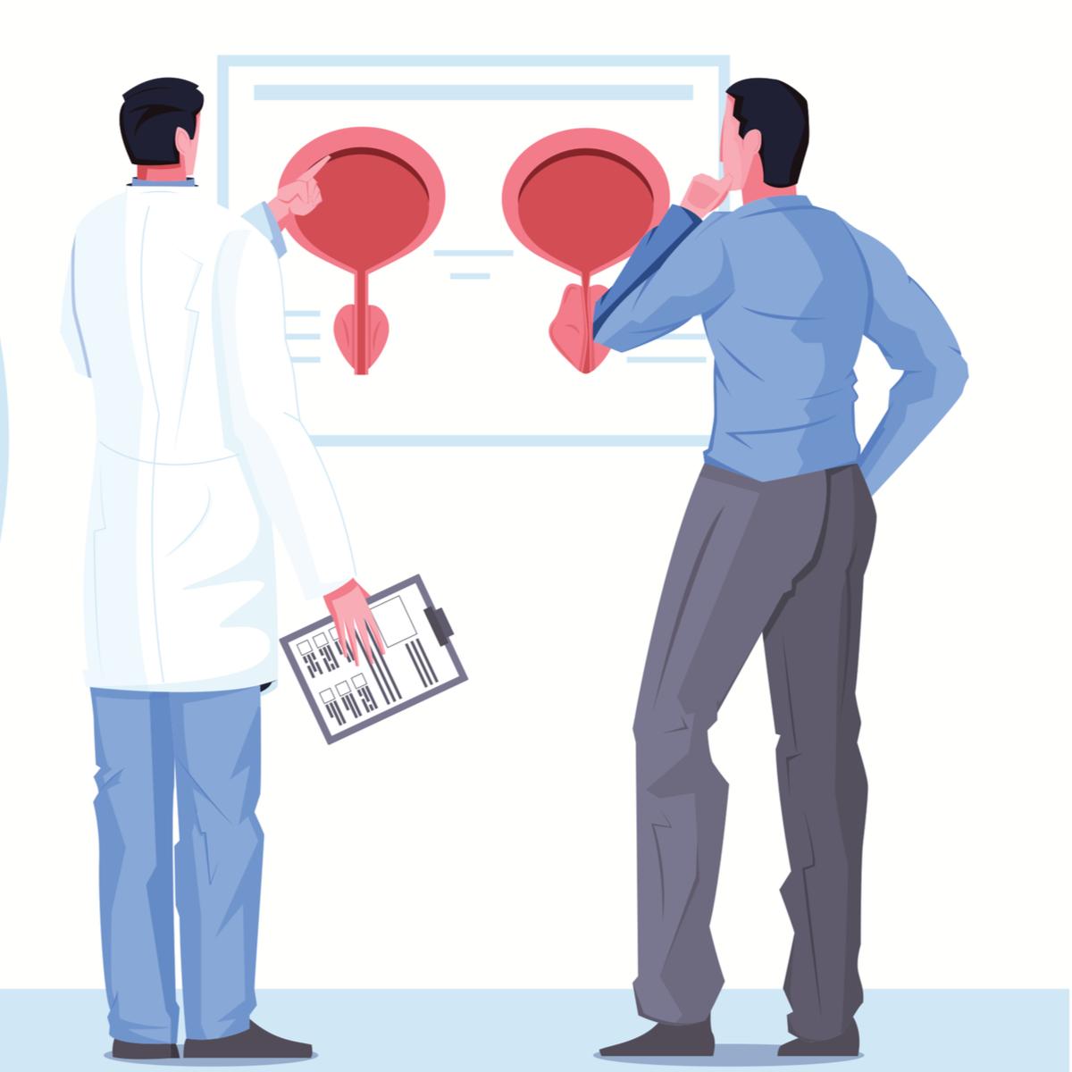 Când este depistat din timp, cancerul de prostată se vindecă. Foto: Shutterstock