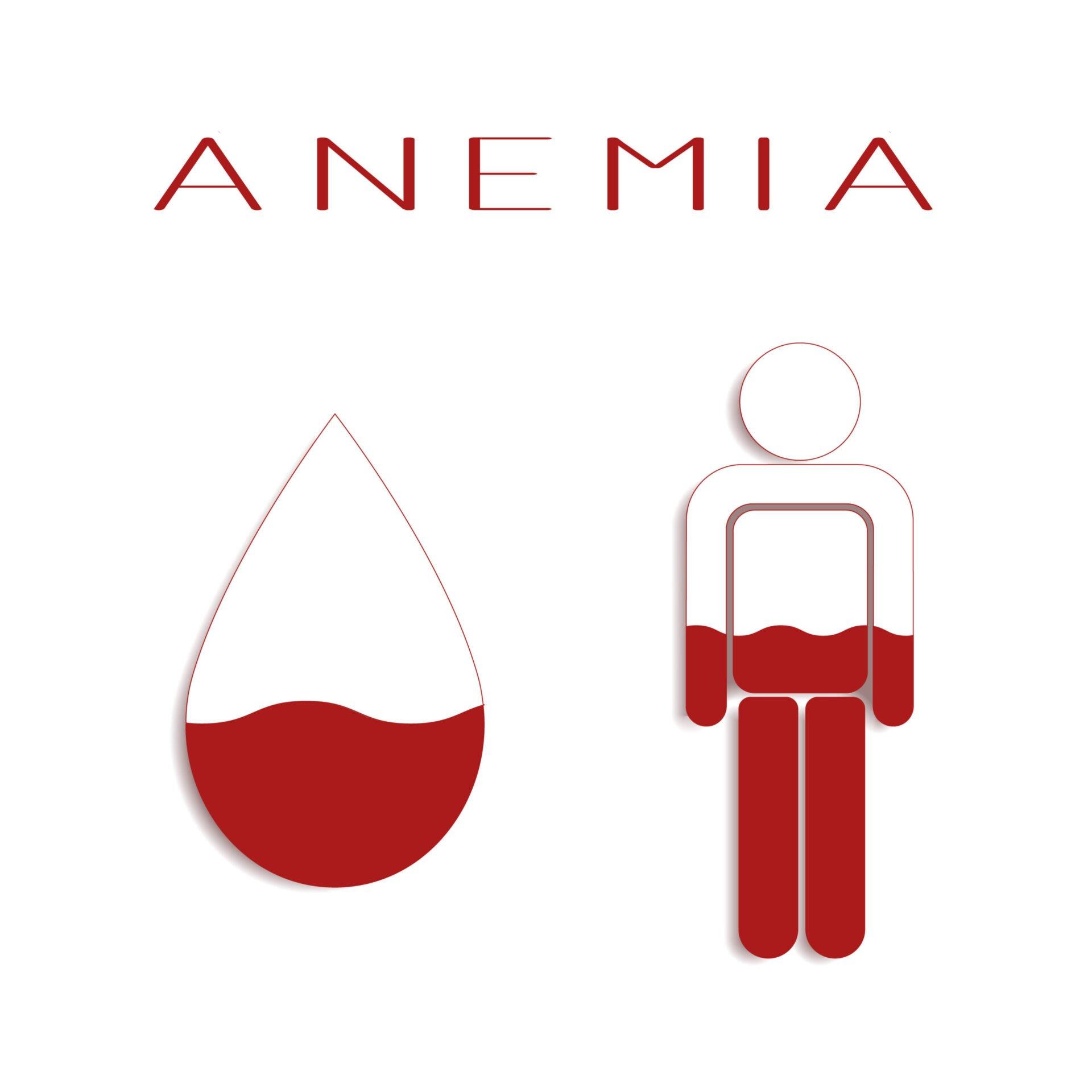 Anemia trebuie tratată doar după ce se fac analize și numai la recomandarea unui medic, pentru că sunt situații în care suplimentele sunt periculoase