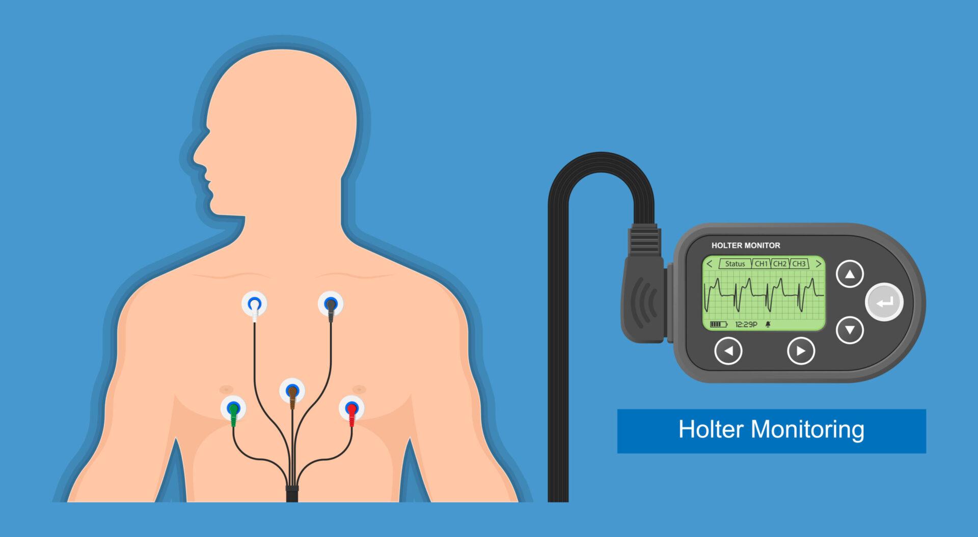 Ghidul de hipertensiune arterială recomandă ca în cazul în care se identifică o tensiune arterială de 140/90 mmHg sau mai mult, pacientul să fie supus unei verificări ale tensiunii arteriale acasă și în timpul activităților de zi cu zi.