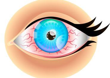 deficiență vizuală punct negru în fața ochiului)