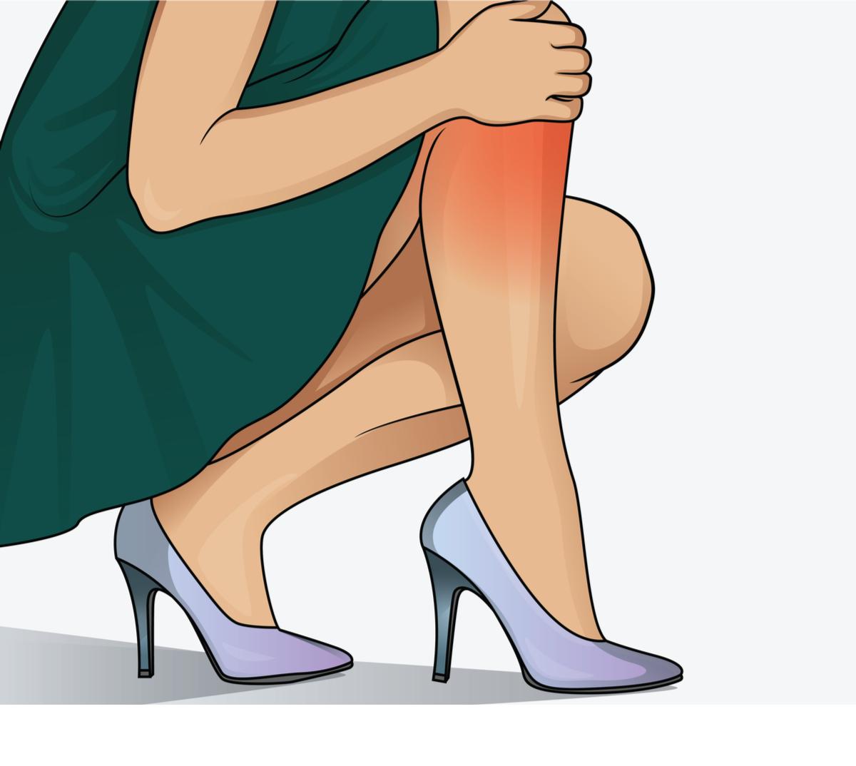 venele de sandal și varicoase
