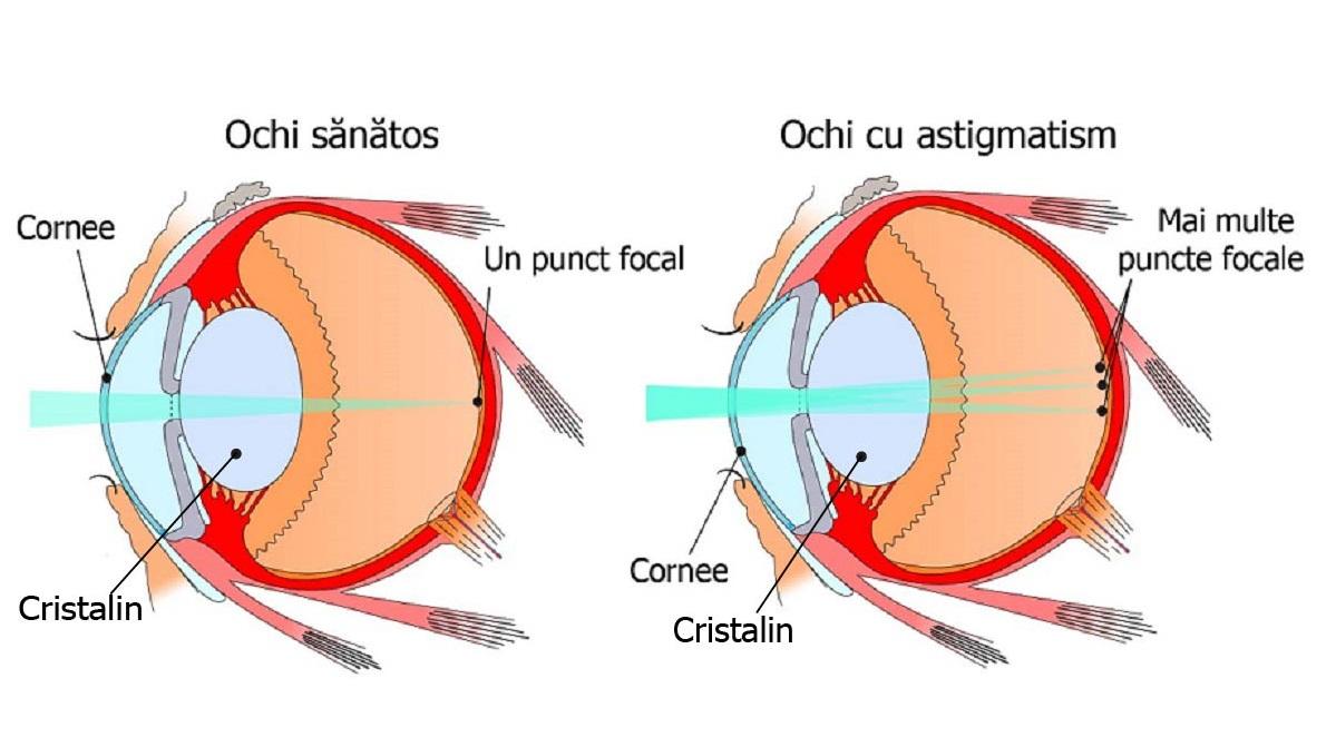 viziunea astigmatism tratamentul acesteia