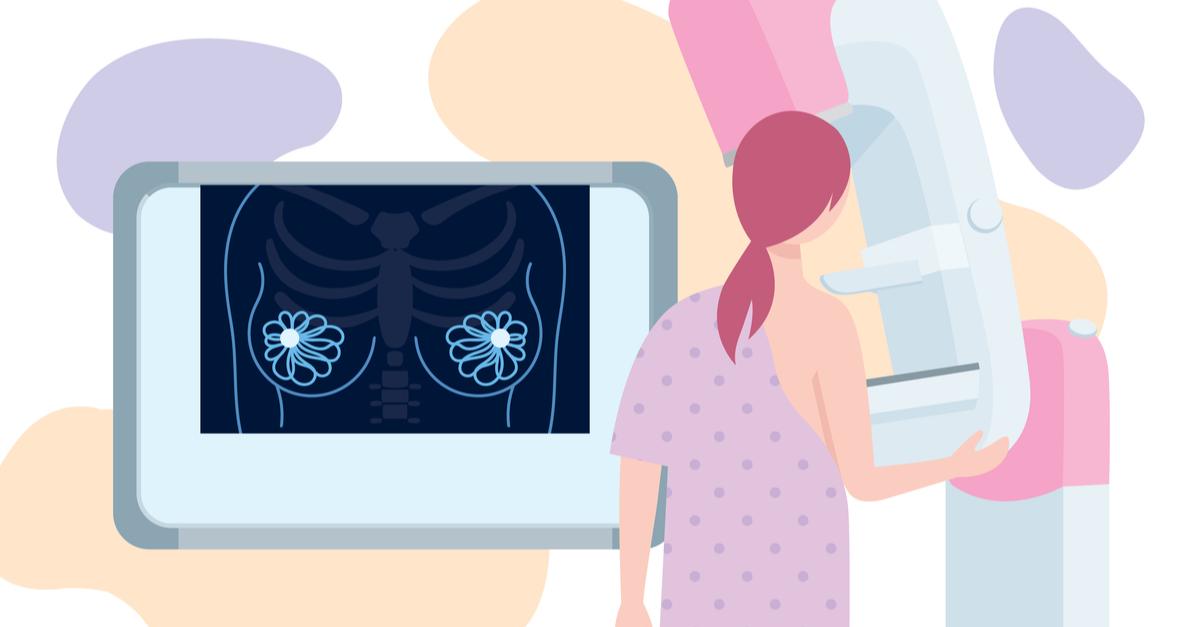 analize medicale femei peste 50 de ani. femeie care face o mamografie