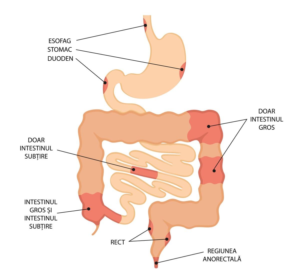 cauza pierderii în greutate a bolii crohn
