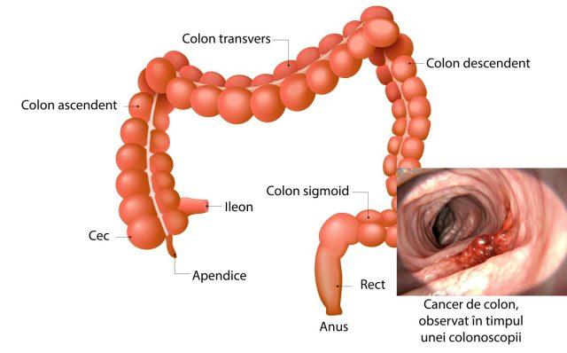 cancer colon descendent simptome
