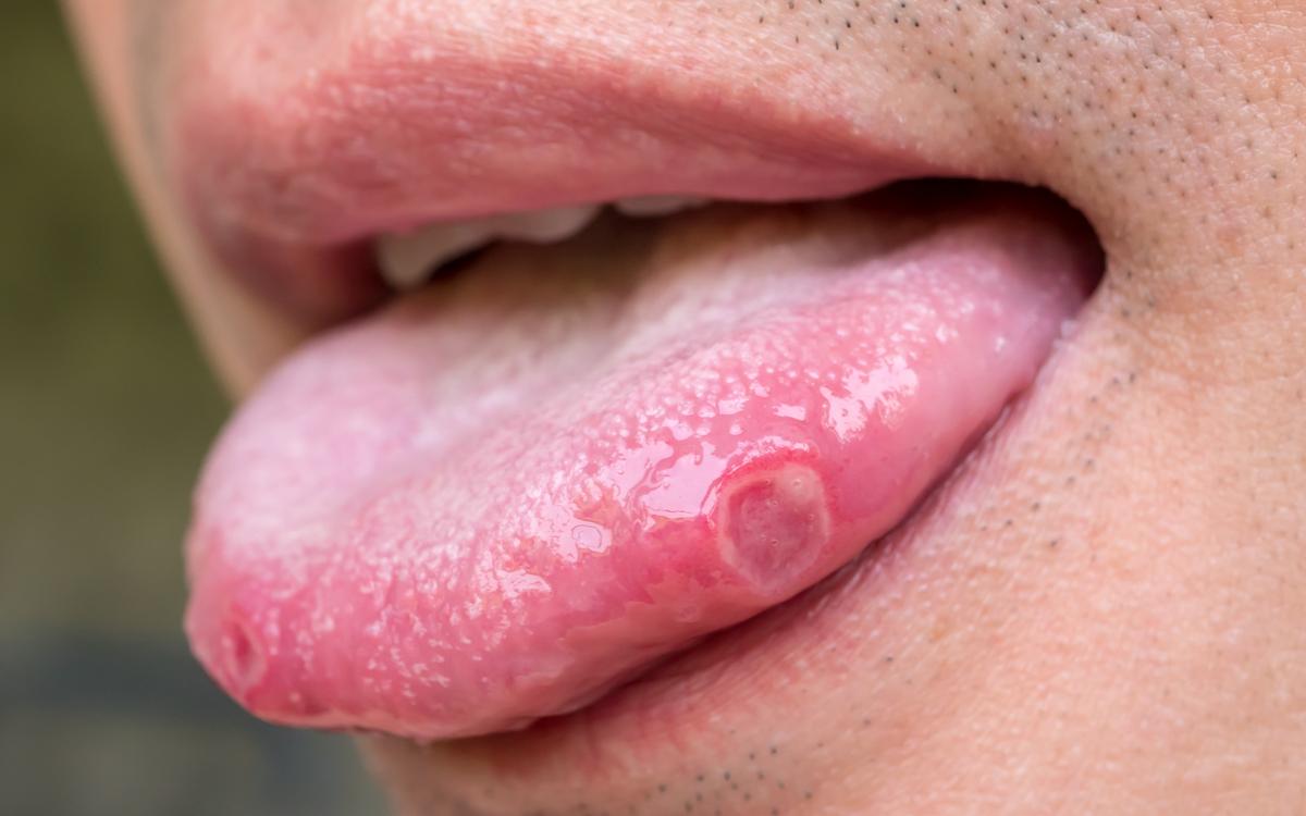 boli ale limbii. afta