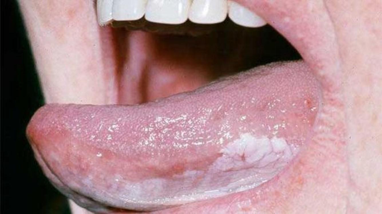 boli ale limbii. pete albicioase