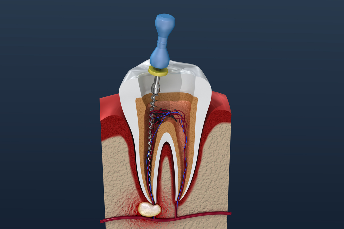 abces-dentar-urgenta-stomatologica-nu-e-bine-sa-il-spargi tratament de canal