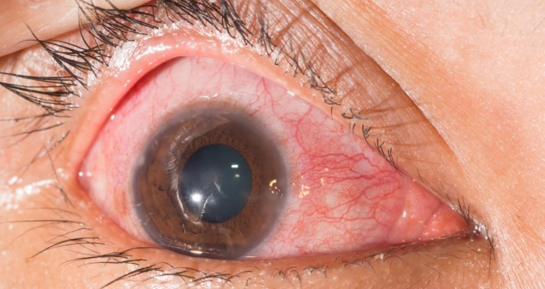 herpes-oral-cauze-simptome-tratament-si-remedii keratita herpetica