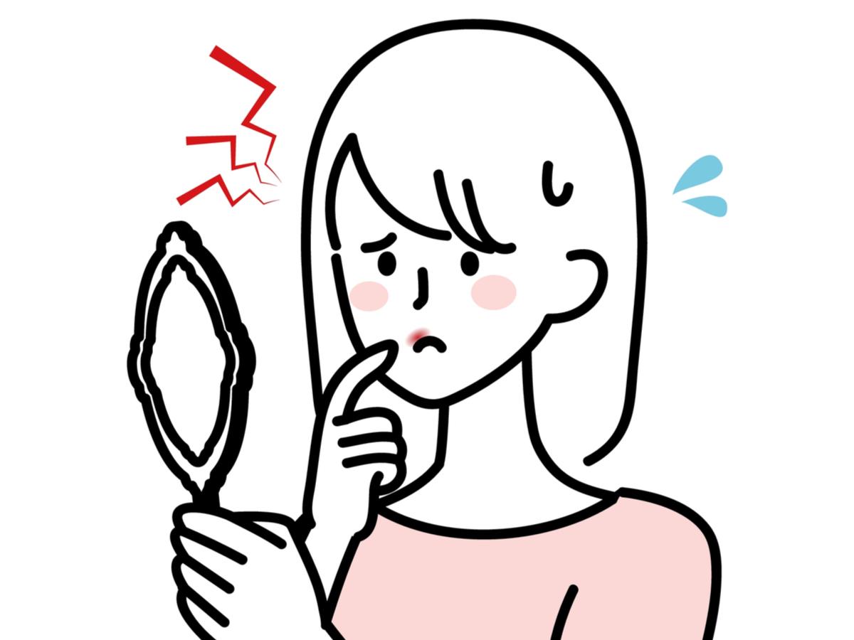 herpes oral cauze simptome tratament si remedii