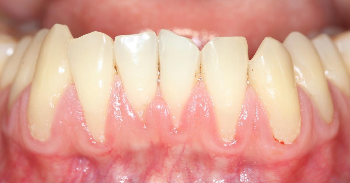sângerările gingivale boala parodontala