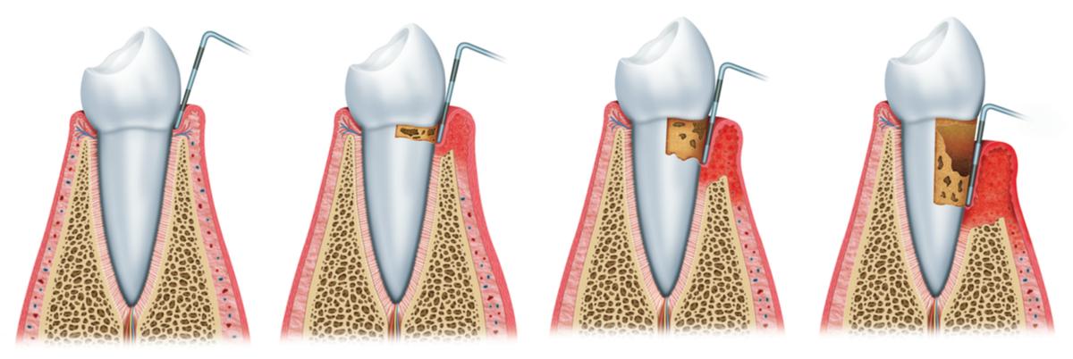 sangerarile gingivale parodontometrie