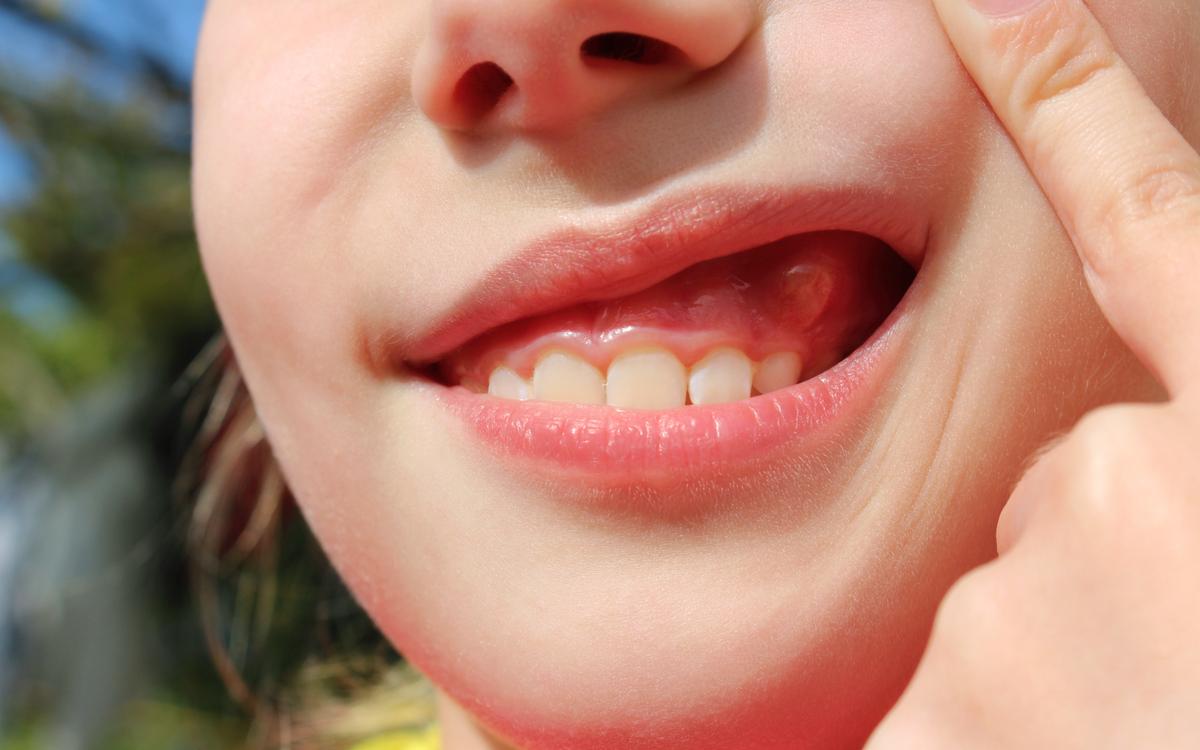 abces-gingival-diferit-de-abces-dentar-tratament abces pe gingie